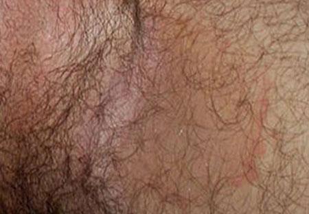 Лечение пахового эпидермофития у мужчин, фото паховой области