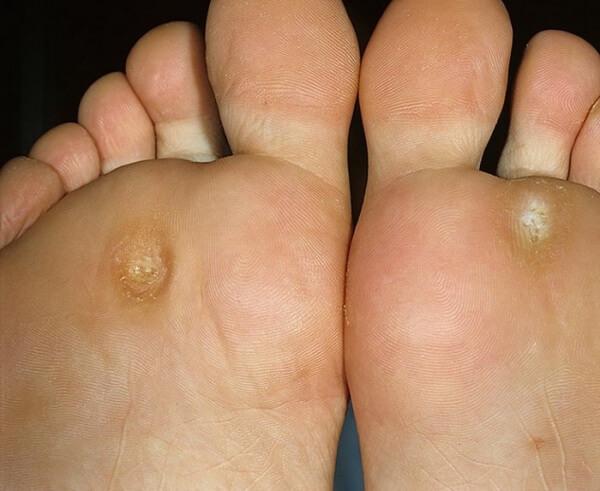 лечение врастающих мозолей на пальцах ног