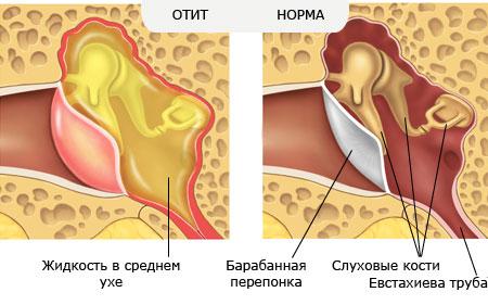 Острый отит диффузный уха