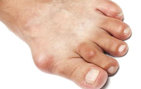 Болезнь подагра симптомы и лечение фото
