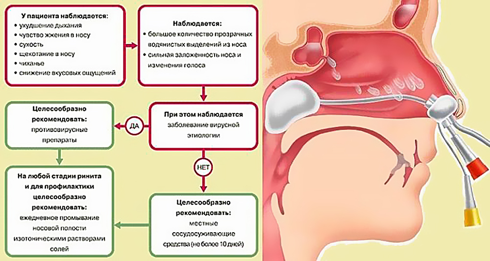 Причина кровь из носа у беременной