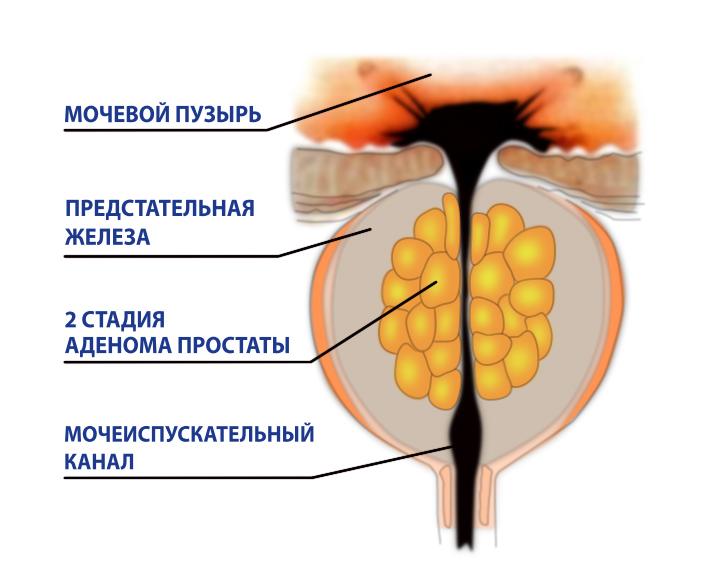 Что такое аденома простаты 3 стадии