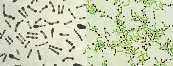 коринебактерии