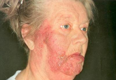 поражение кожи при хроническом боррелиозе
