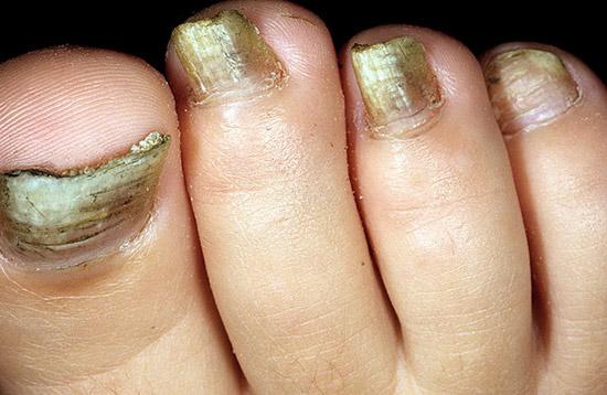 заболевание ногтей, вызванное плесневыми грибками