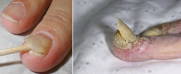 болезни ногтей