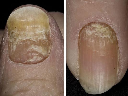 травма ногтя