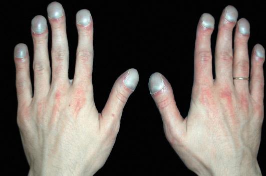 Фото ногтей при болезни печени
