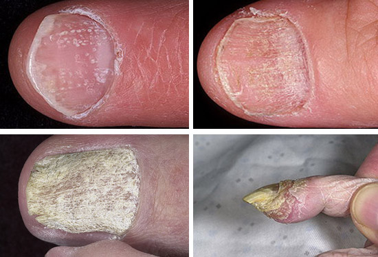 Как отличить грибок ногтей и псориаз ногтей