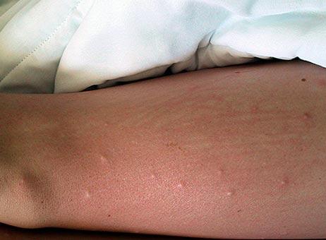 кожа при укусах блох