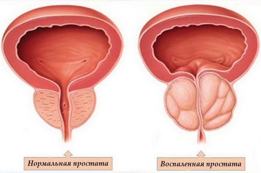 Можно ли заниматься любовью лечении простатита
