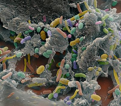 кишечные бактерии
