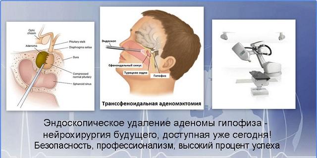 Лечение аденомы гипофиза в москве бурденко