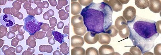 атипичные лимфоциты - мононуклеары
