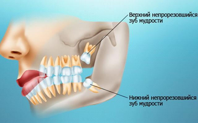 Шов после удаления зуба сколько заживает