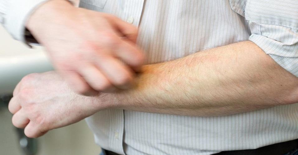 Trattamento della dermatite