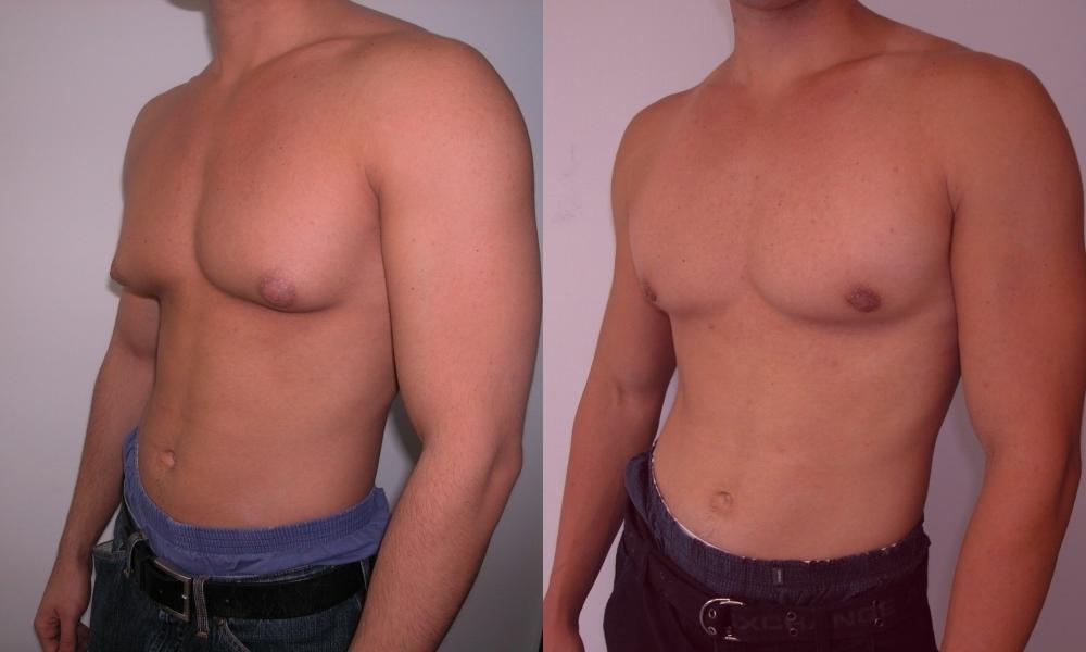 фото груди мужчины