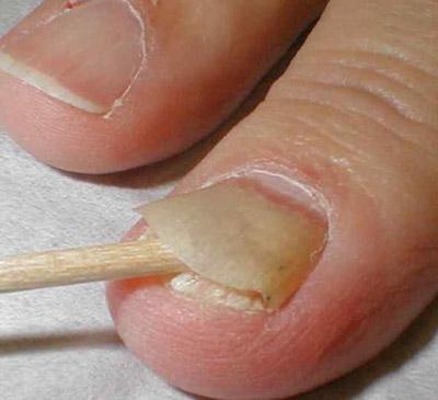 отделение ногтевой пластины