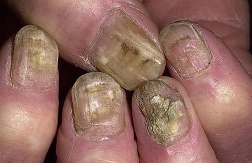 последствия грибка на руках
