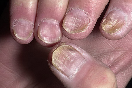 ногти после химиотерапии