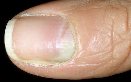 первые признаки грибка ногтей на руках