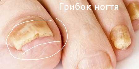 Явно видное поражение ногтевой пластины, фото