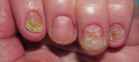 последствия запущенной формы грибкового поражения ногтей