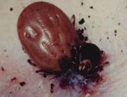 Лечение клещевого энцефалита