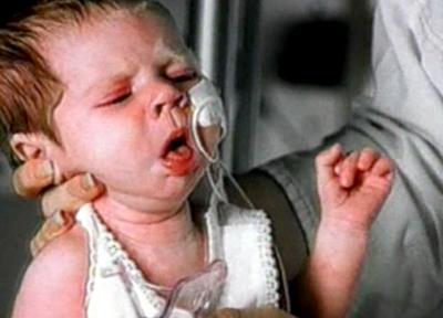 спазматический приступообразный кашель