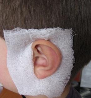 Как сделать компресс за ухом 818