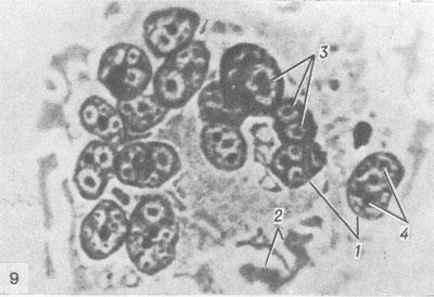 клетки Уортина-Финкельдея