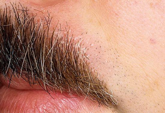 себорея кожи области усов.