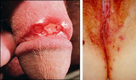 генитальный герпес у мужчины и женщины