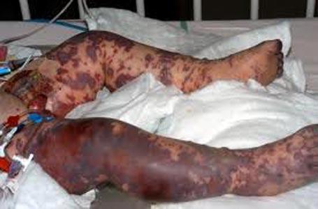 Синдром Уотерхауса – Фрйдерихсена при менингокцемии.