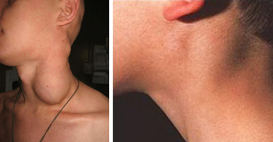 увеличение шейных лимфоузлов при инфекционном мононуклеозе