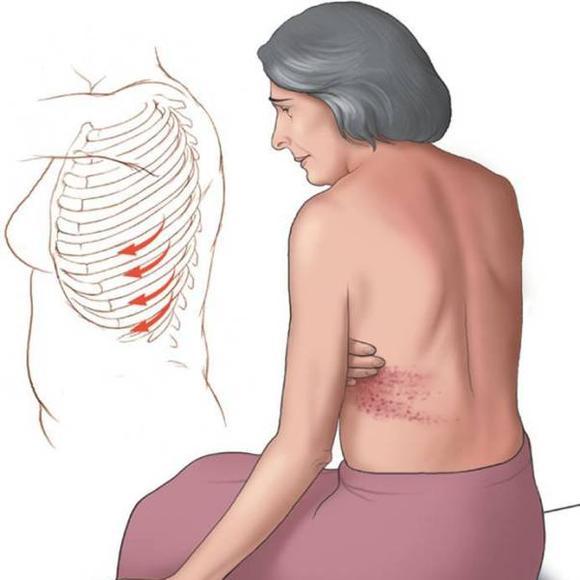Болит под мышкой и спина