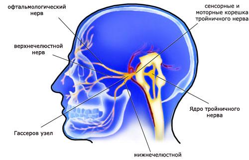Лечить воспаление тройничного нерва в домашних условиях