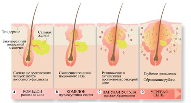 Сальні пробки: причини появи і методи лікування