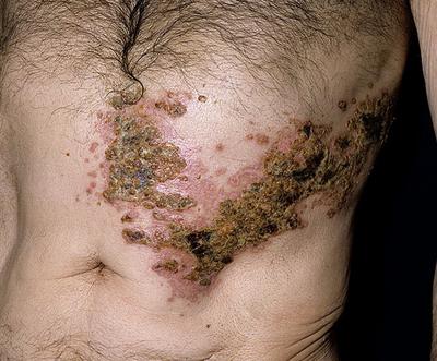опоясывающий лишай протекает у лиц с угнетением иммунной системы
