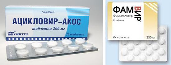 противовирусные препараты Ацикловир и ФамВир