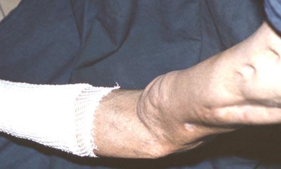 хронический остеомиелит бедра