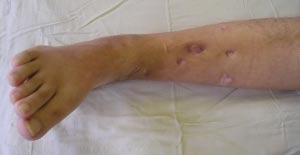 последствия остеомиелита правой голени