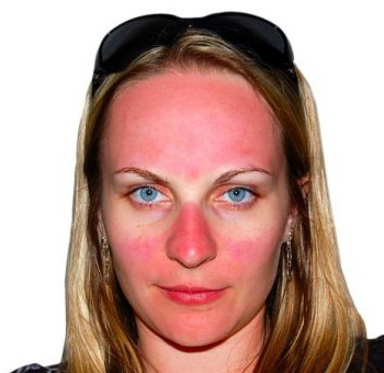 Чем лечить солнечный ожог на лице в домашних условиях 306