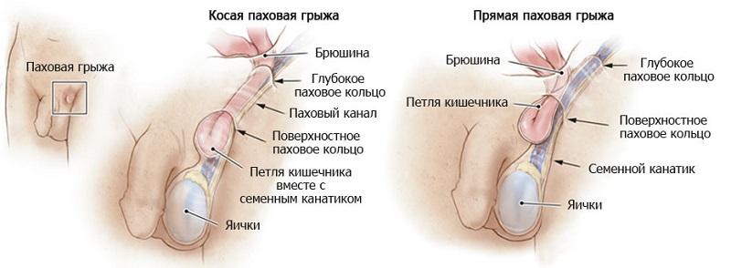 kak-viglyadit-penis-posle-obrezaniya