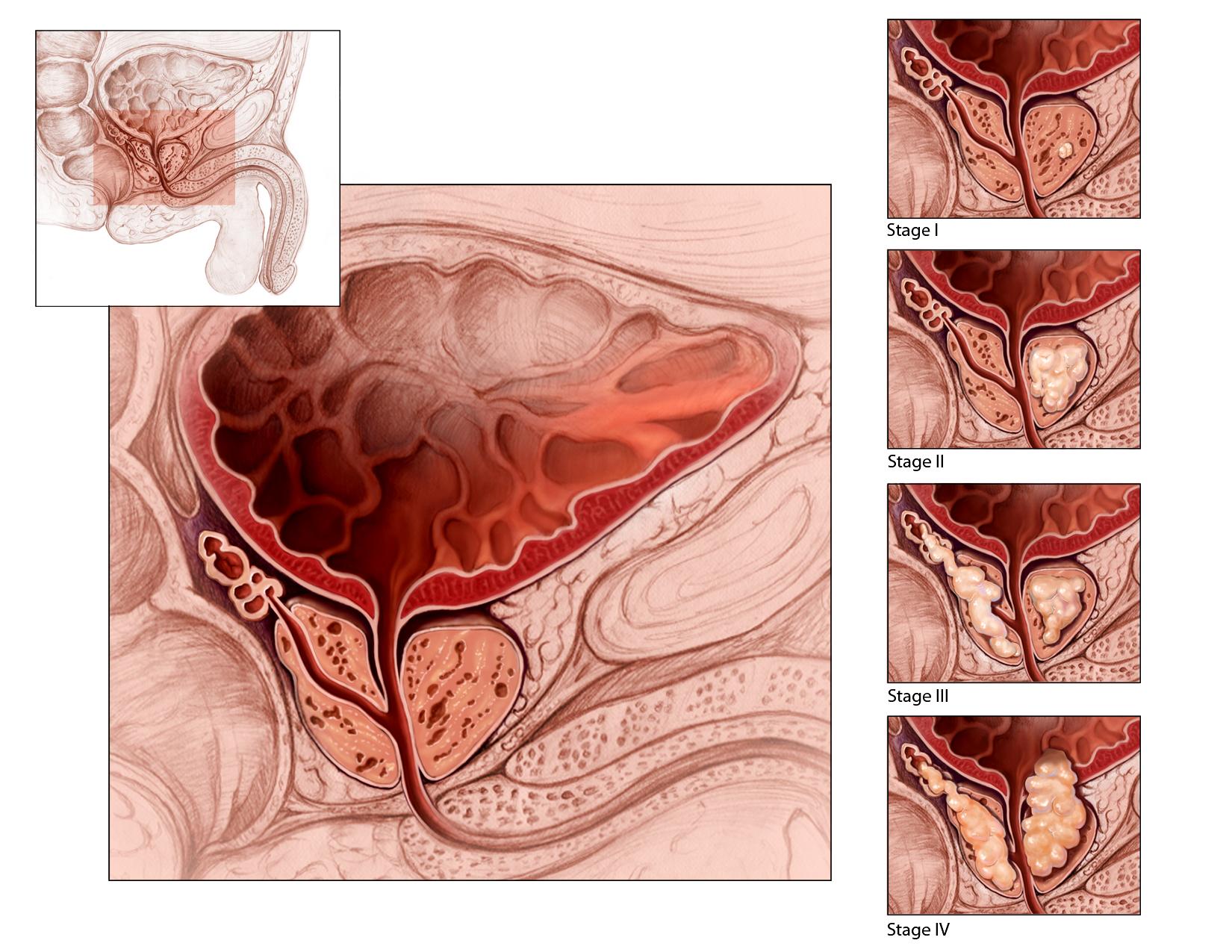 Эффективное лечение простатита, лечение аденомы, препараты 46