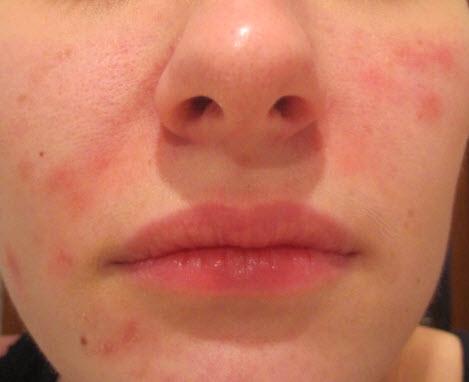 Хламидиоз на лице
