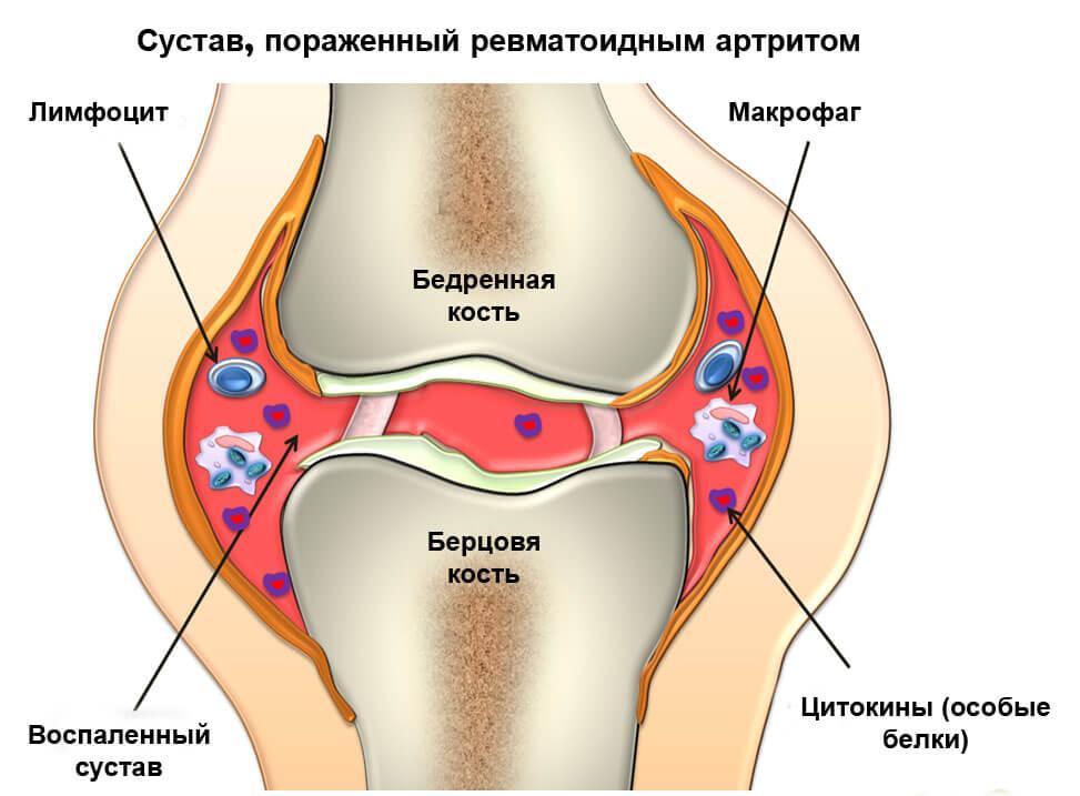 ревматоидный артрит челюсть