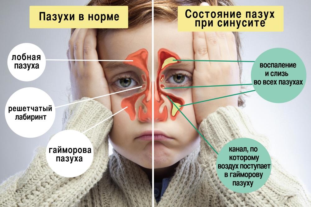 Как лечат синусит у взрослых в домашних