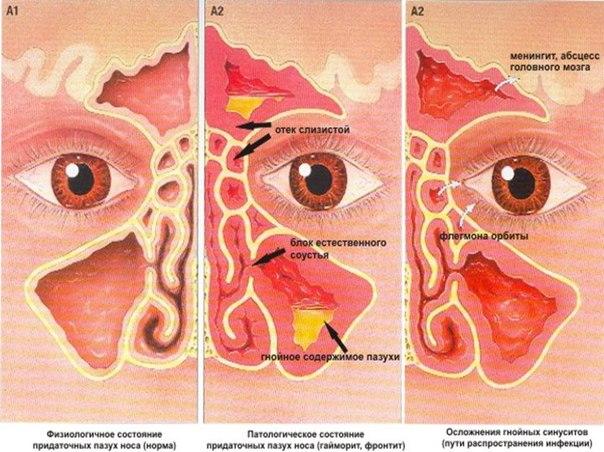 как избавить нос трудно дышит капли