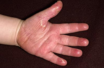 сыпь при скарлатине сохраняется 3 - 7 дней